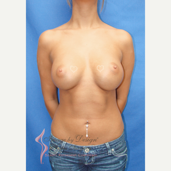 18-24 year old woman treated with Breast Implants after 3090678