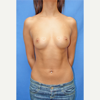 18-24 year old woman treated with Breast Implants before 3090678