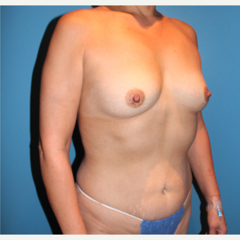 35-44 year old woman treated with Breast Augmentation before 3806082