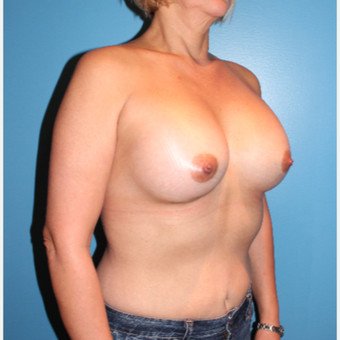 35-44 year old woman treated with Breast Augmentation after 3806082