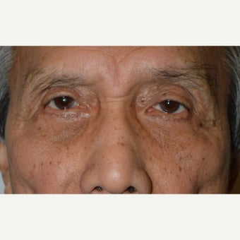 72 year old man treated with Eye Bags Treatment (Lower blepharoplasty) after 1645624