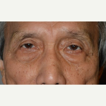72 year old man treated with Eye Bags Treatment (Lower blepharoplasty) before 1645624