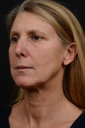 45-54 year old woman treated with Lower Face Lift before 2592323