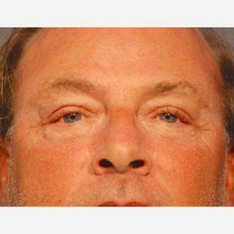 55-64 year old man treated with Eyelid Surgery after 3129758