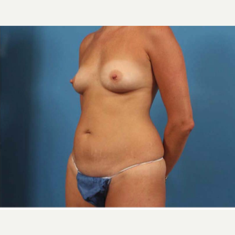 35-44 year old woman treated with Breast Implants before 3787281