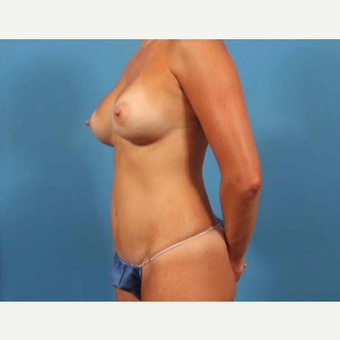 35-44 year old woman treated with Breast Implants after 3787281