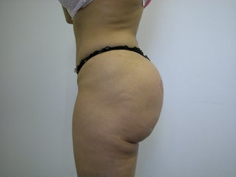 Butt Implants after 536134