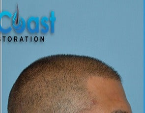 35-44 year old man treated with FUE Hair Transplant after 3604725
