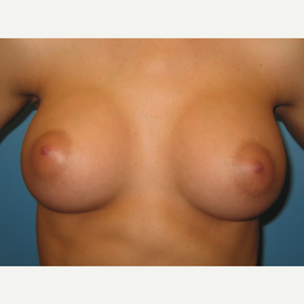 26 year old woman treated with Breast Augmentation after 3486712