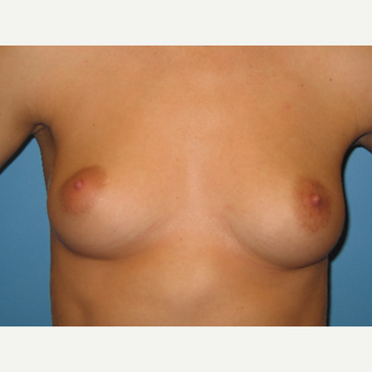 26 year old woman treated with Breast Augmentation before 3486712