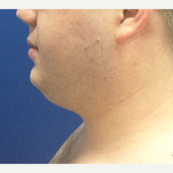 25-34 year old man treated with Smart Lipo before 3496364