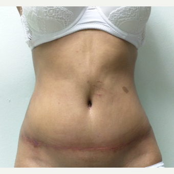29 year old woman treated with Tummy Tuck after 3260163
