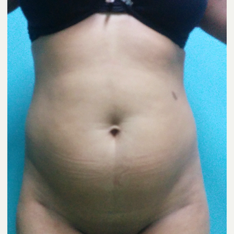 29 year old woman treated with Tummy Tuck before 3260163