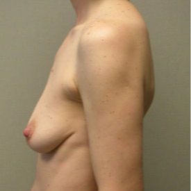 Breast Augmentation before 3680746