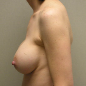 Breast Augmentation after 3680746