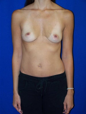 Breast Augmentation before 89634