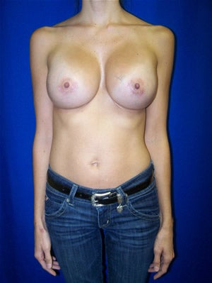 Breast Augmentation after 89634