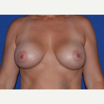 45-54 year old woman treated with Breast Augmentation with Ideal Saline Breast Implant after 3105062