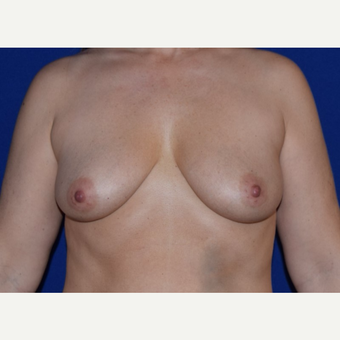 45-54 year old woman treated with Breast Augmentation with Ideal Saline Breast Implant before 3105062