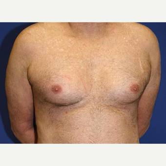 45-54 year old man treated with Male Breast Reduction before 3093262