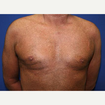 45-54 year old man treated with Male Breast Reduction after 3093262