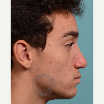 17 or under year old man treated with Septoplasty/open rhinoplasty after 3108917