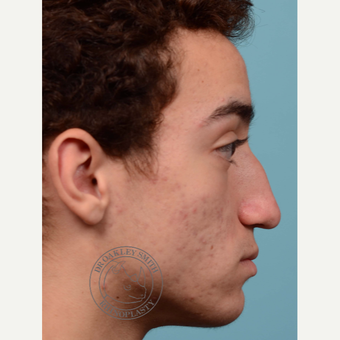 17 or under year old man treated with Septoplasty/open rhinoplasty before 3108917
