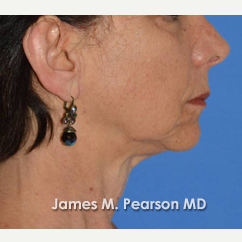 55-64 year old woman treated with Facelift before 3815017