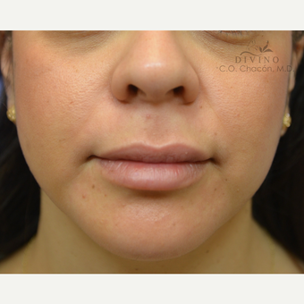 25-34 year old woman treated with Lip Augmentation after 3392028