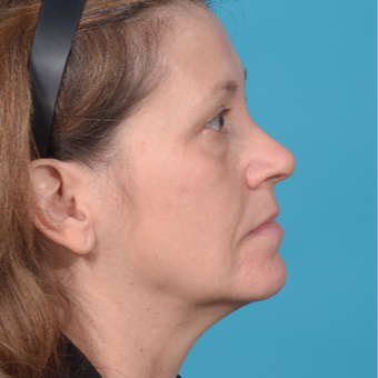 55-64 year old woman treated with Facelift before 3299706