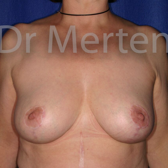 Breast Reduction after 3681197
