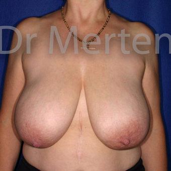 Breast Reduction before 3681197