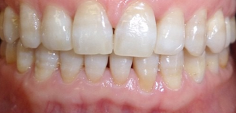 35-44 year old woman treated with Invisalign after 2043302