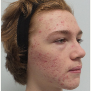 17 or under year old man treated with Infini RF, and Spectra Gold toning for Acne/Acne Scars before 2765694