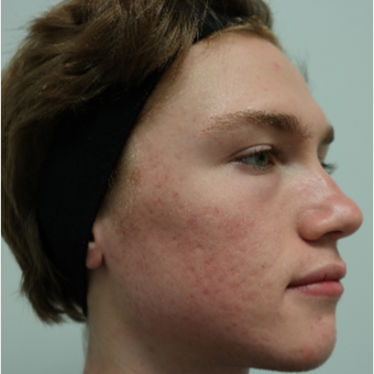 17 or under year old man treated with Infini RF, and Spectra Gold toning for Acne/Acne Scars after 2765694