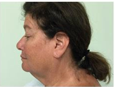 55-64 year old woman treated with Facelift before 3500712
