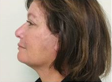55-64 year old woman treated with Facelift after 3500712