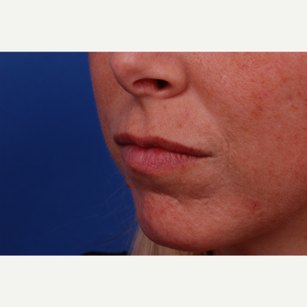 25-34 year old woman treated with Restylane after 3175233