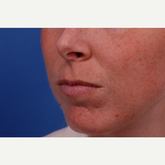 25-34 year old woman treated with Restylane before 3175233