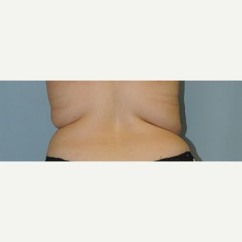 25-34 year old woman treated with Smart Lipo before 1738333