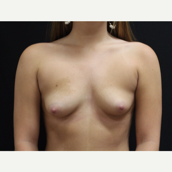 18-24 year old woman treated with Breast Augmentation before 3099460