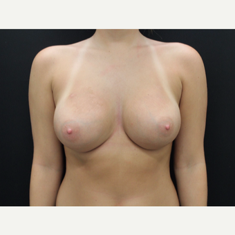 18-24 year old woman treated with Breast Augmentation after 3099460