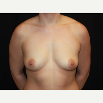25-34 year old woman treated with Breast Lift with Implants before 2993212