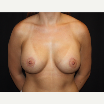 25-34 year old woman treated with Breast Lift with Implants after 2993212