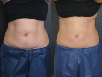 53 Year Old Female Coolsculpting Treatmet Upper and Lower Belly before 1475124