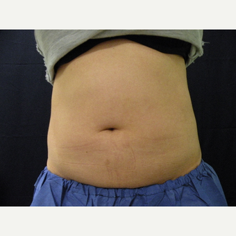 35-44 year old woman treated with CoolSculpting after 3680397