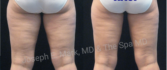 35-44 year old woman treated with CoolSculpting after 3689975