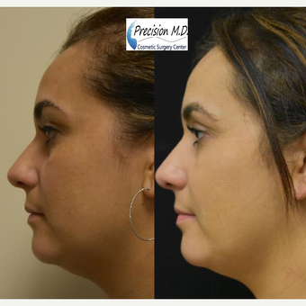 Vampire Facelift Before After Pictures Realself