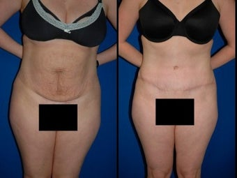Tummy Tuck before 3054063