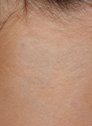 Laser tattoo removal after 1332890